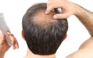 К чему снится потеря волос у женщины. Выпадают волосы во сне: самые точные толкования по соннику