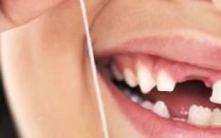 Сонник к чему снится выпал зуб. К чему снится выпадение зубов без крови? Гнилые, черные, желтые, кривые зубы